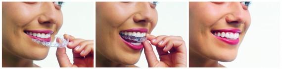 Invisalign-Canberra-Dentist-Northside-Family-Dental