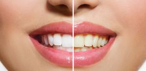 Take Home teeth-whitening-Northside-Family-Dental