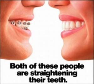 invisalign-teeth straightening-northside family dental-canberra-gungahlin