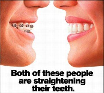 Invisalign Canberra Cosmetic Dentist -Call 6242 7777 -Book