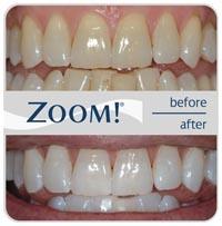 zoom_before_after-Northside-Family-Dental-Canberra